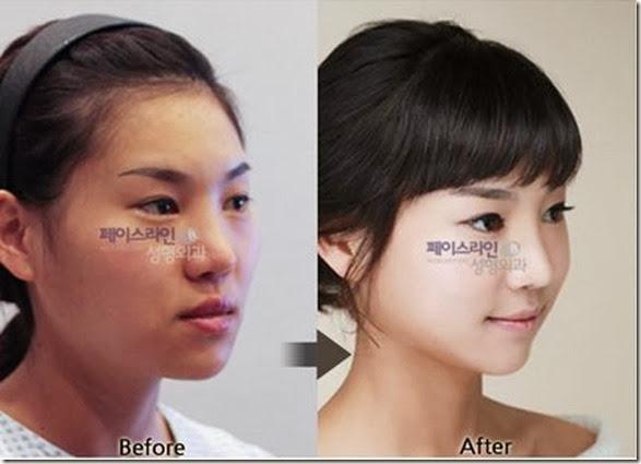 korean-plastic-surgery-25