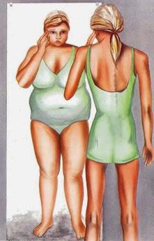 Anorexia a mental illness