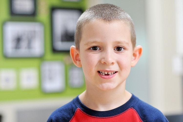 Anders' Lost Teeth (4 of 5) resized TBF
