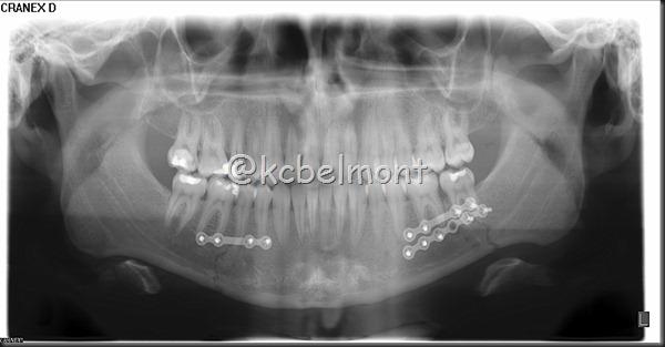 fratura de corpo de mandíbula