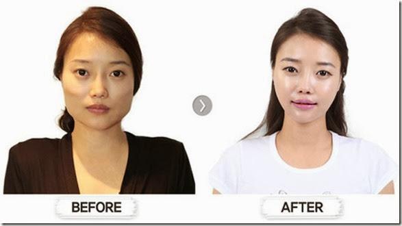 korean-plastic-surgery-26