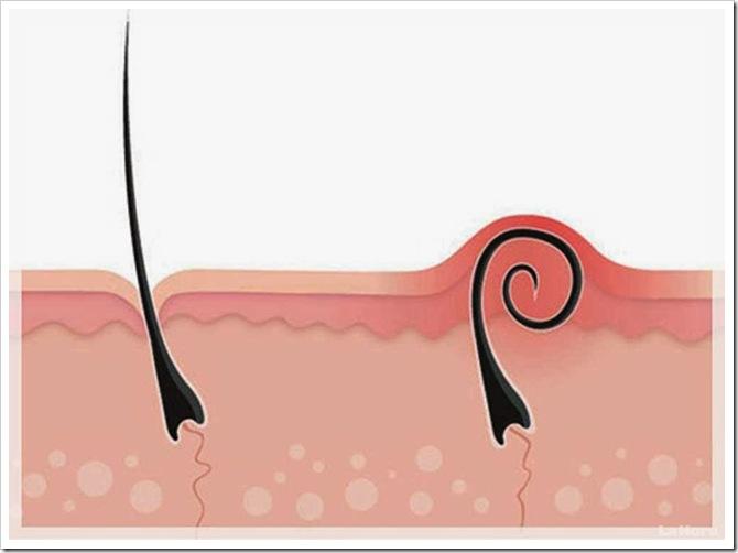 foliculitis--que-es-y-que-lo-causa-20120418085651-4fa70da14e88a83145f8d57962bd6594