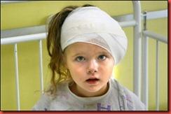 child-brain-injury
