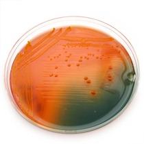 hektoen_e.coli