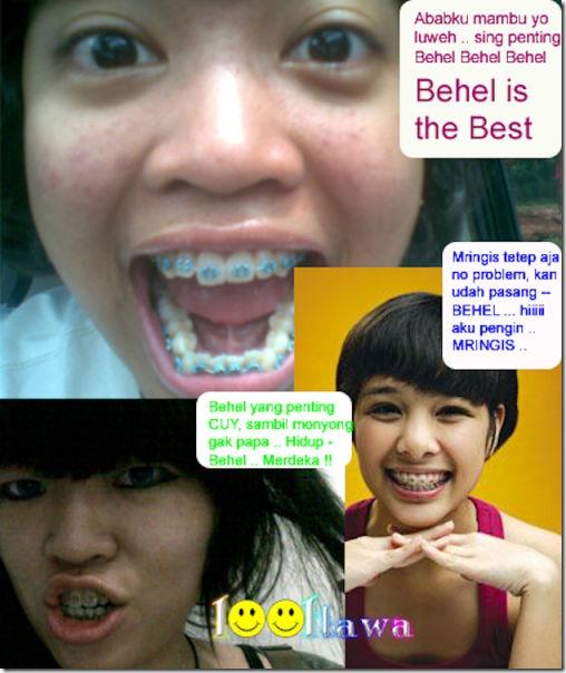 fake-braces-asia-trend-8
