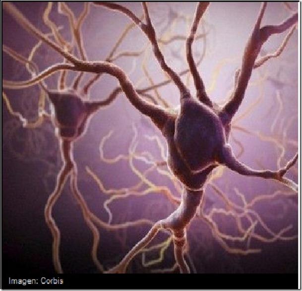 neurona a