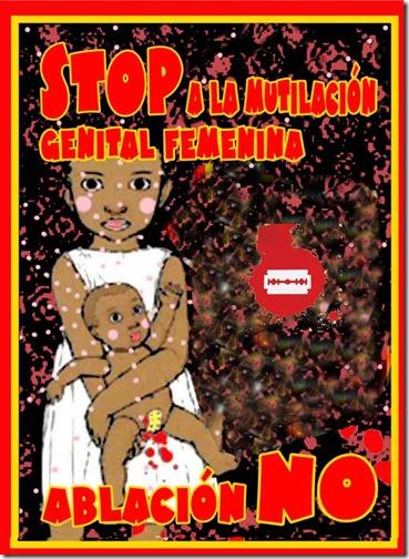 ABLACION STOP 1