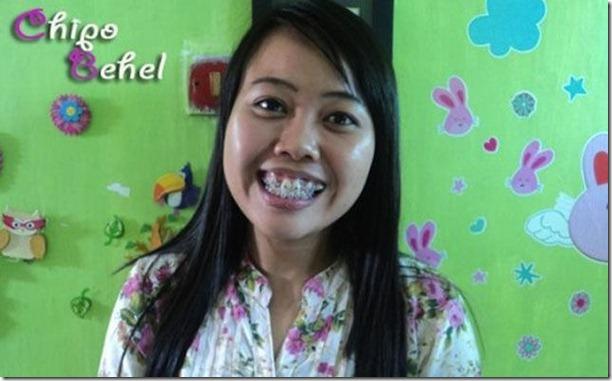 fake-braces-asia-trend-14
