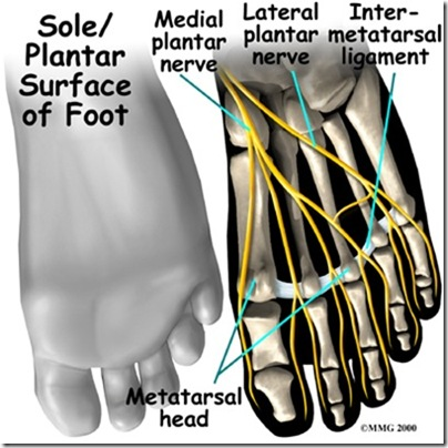 foot_neuroma_anat01