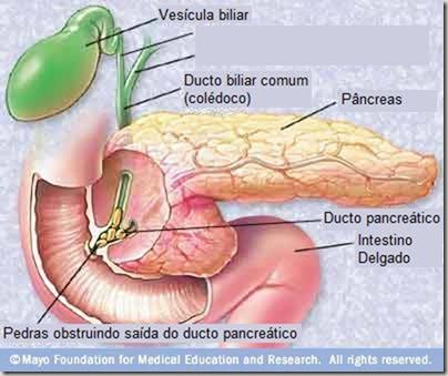 pancreatitisandgallstones