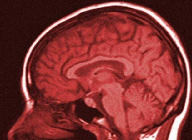 cerebro plomo