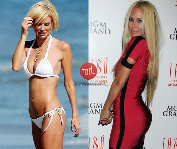 booty implants of Jenna Jameson