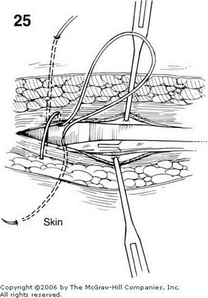 Zollinger Atlas of Surgery: LAPAROTOMY, THE CLOSURE