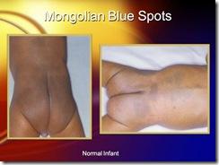 mongolian blue spots medicalshow