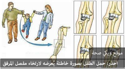 احذر: حمل الطفل بصورة خاطئة يُعرضه لارتخاء مفصل المرفق