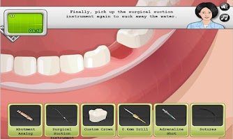 Screenshot of Dental Implant Surgery