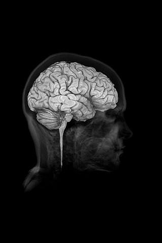 Real Anatomy - Brain