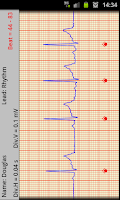 Screenshot of T-ECG User Telephonic ECG