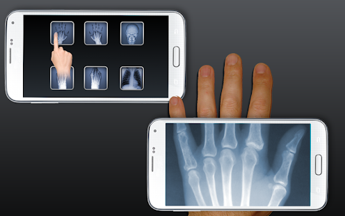 Best Free xray android apps - Android Freeware