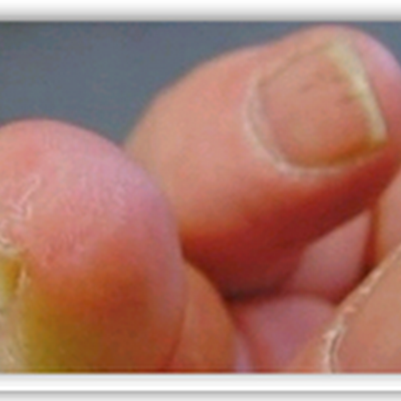 "Biomagic ""pixie dust"" regrows man's lopped-off finger"