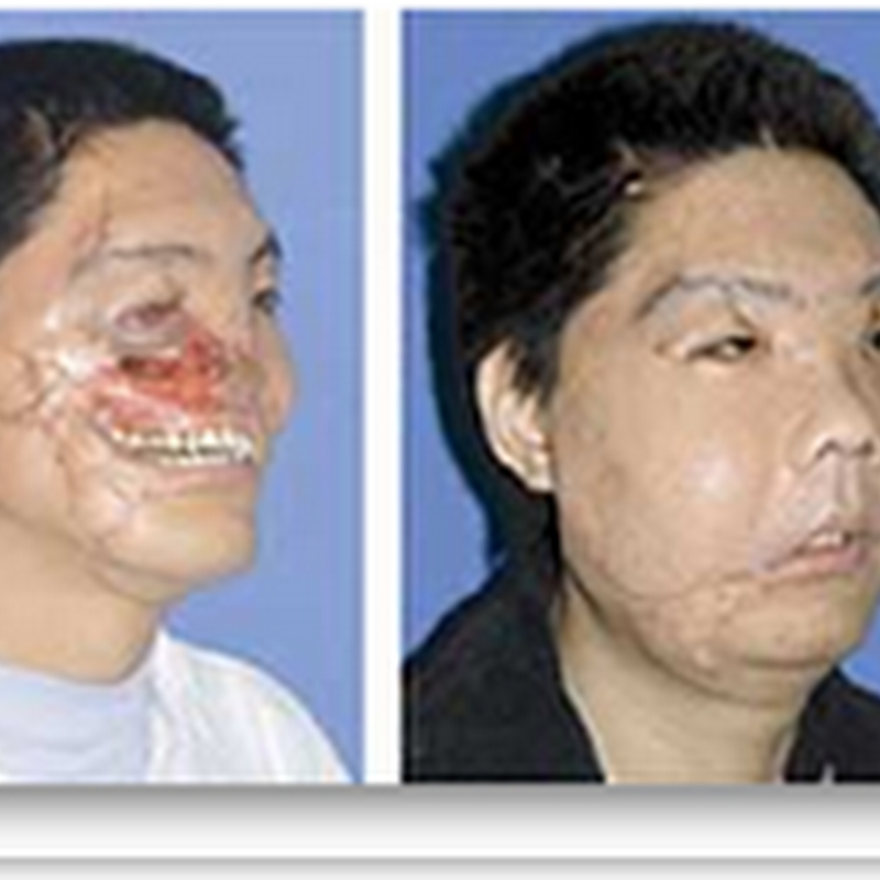 Two More Face Transplants Show Promising Results - in Surgery