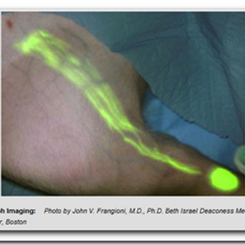 Surgery By Numbers - Glowing Cancer Cells