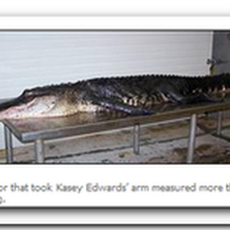 Gator victim gets new high-tech hand