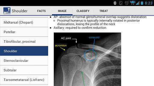 Ortho Traumapedia - screenshot
