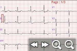 Screenshot of eUno R10 Mobile Telecardiology