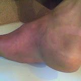 Rotura de tend�o e ligamento plantar - �lbum do Picasa