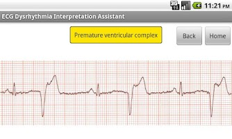 Screenshot of ECG Interpretation Assistant
