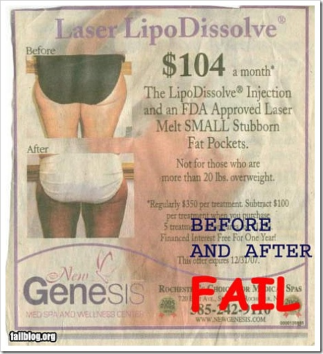 Before and After FAIL - Laser Lipo Dissolve - The Lipo Dissolve Injection and an FDA Approved Laser Melt Small Stubborn Fat Pockets.