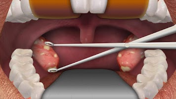 Screenshot of Virtual tonsillectomy surgery