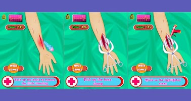 Screenshot of Arm Surgery - Doctor Game