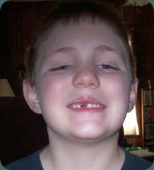 nicks tooth