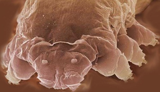 Face of a Follicle Mite