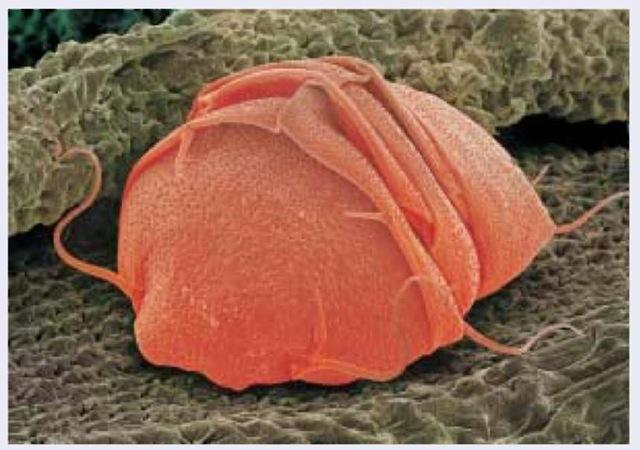 Phylum Tardigrada