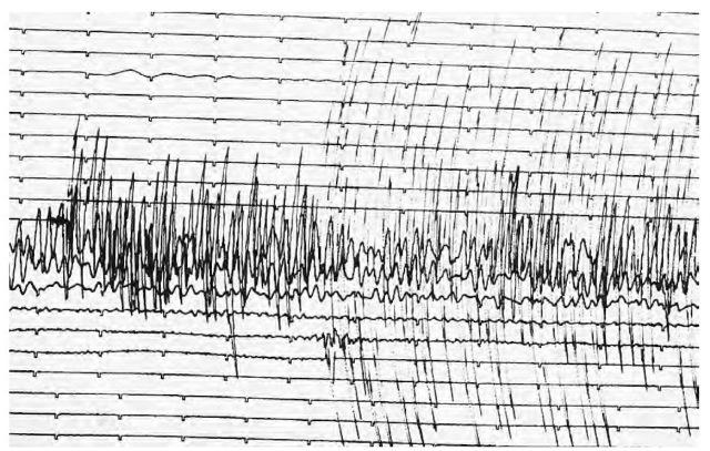 A seismograph reading from the 1989 Loma Prieta, California, earthquake.
