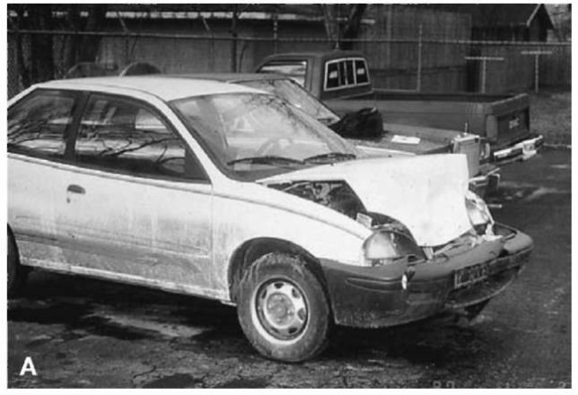 (A) and (B) A 1995 GEO Metro with minor front-end damage consistent with an impact speed of less than 15k.p.h. (9m.p.h.).