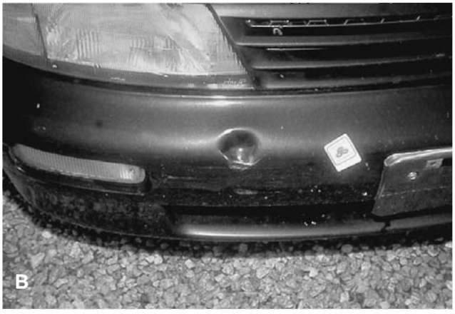 (A) and (B) A 1995 Nissan Altima. The only damage to the vehicle is a 5 x 5 cm indentation in the front bumper from impact with the ball of a trailer hitch.