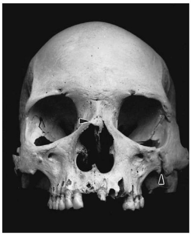 Healed nasal and zygomatic fractures (Pretoria skeletal collection).
