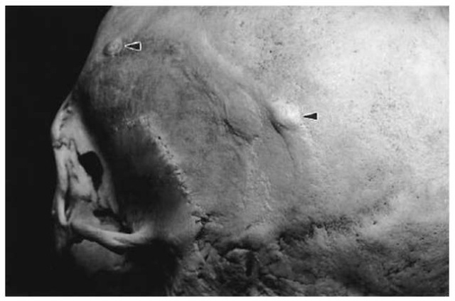 Ivory 'button' osteomata on the skull (Pretoria skeletal collection).