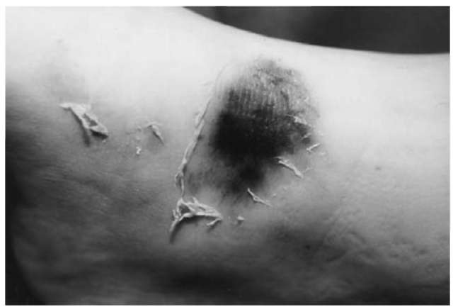 Tangential abrasion confined to the upper layers of the skin. The shreds of epidermis indicate the direction of impact. The central parts of the nuded corium show a parchmentlike discoloration from drying.