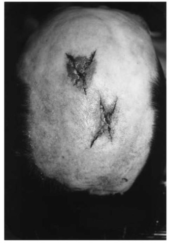 Parietal region of a man whose scalphas been shaved before autopsy, showing two stellate lacerations from hammer blows to the head. The abrasion which belongs to the upper injury approximately reproduces the shape of the rectangular hammer face.