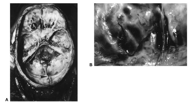 (A) Base of the skull with linear fracture (arrow) in the posterior fossa extending downwards into the foramen magnum, sustained in a fall on the occiput. Note the presence of secondary fractures in the anterior fossa floor. (B) Close-upview of the fractured left orbital roof with dark coloration from underlying blood.