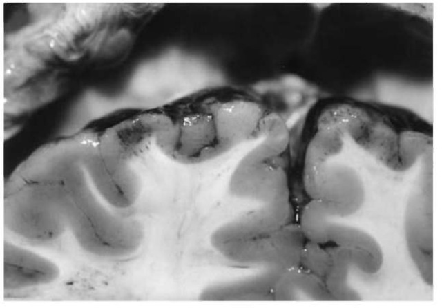 Close-upview of the frontal lobes with characteristic streak-like, densely arranged contusion hemorrhages in the cortex.