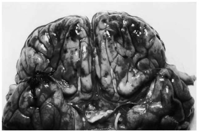 Contrecoupcontusions on the undersurface of the frontal lobes (mostly located at the crests of the convolutions) with slight subarachnoid hemorrhage.