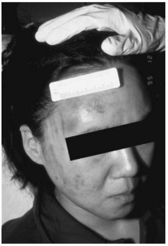The hand is the most common 'weapon' of domestic violence. The slap mark present on this patient's cheek shows areas of central clearing from impact with the extended fingers.