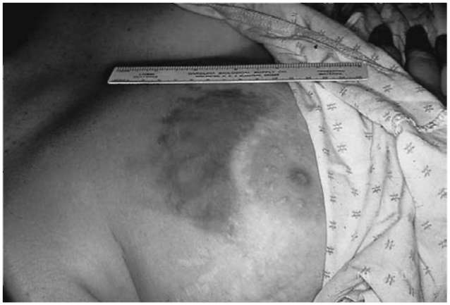 The presence of unexplained contusions to the breast is strongly correlated with domestic or partner violence. This breast displays a several-day-old contusion from the tissue being squeezed during an assault.