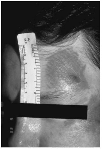 The pattern abrasion present on the patient's left forehead was the result of impact with a carpeted floor. The linear characteristics of the carpet's weave are imprinted on the patient's skin.